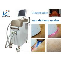 Buy cheap Fast Vacuum Laser Hair Removal Machine Comfortable Permanent Hair Reduction from wholesalers